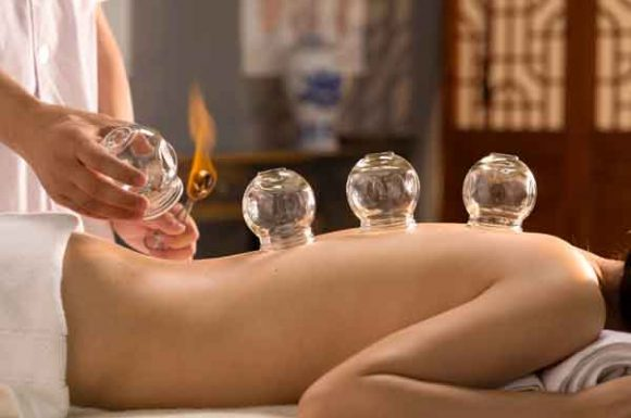 firecupping
