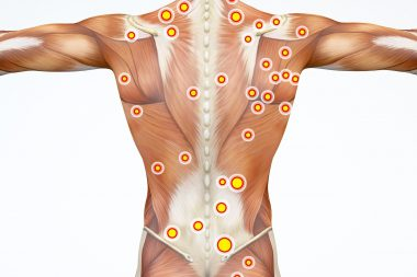Trigger Points Explained