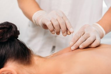 Acupuncture Questions Answered