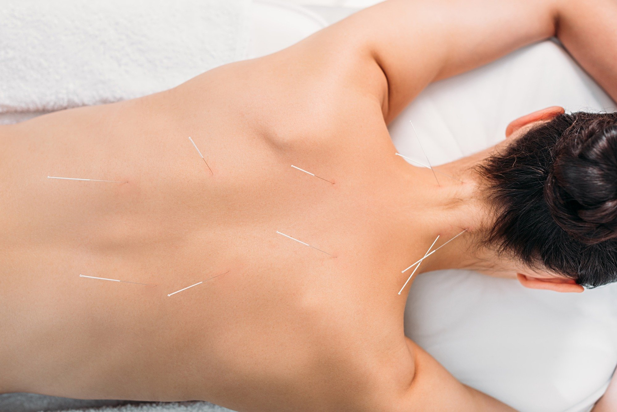 Answering 3 Common Questions About Acupuncture